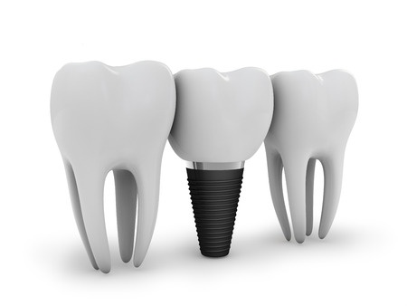 dental implants nyc, michael sinkin dds