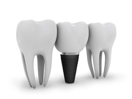 dental implants nyc, michael sinkin dds